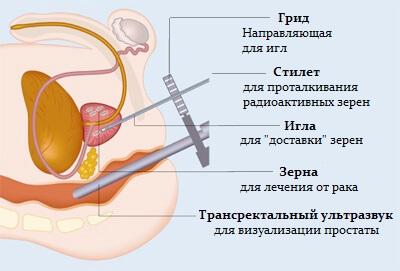 Брахитерапия простаты