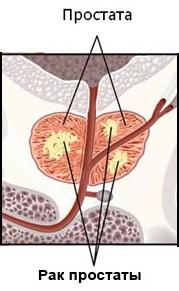 метастазы рака простаты в капсуле
